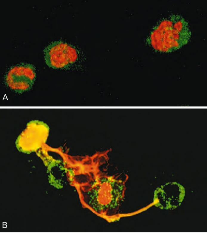 Significance of neutrophil extracellular traps (NETs)