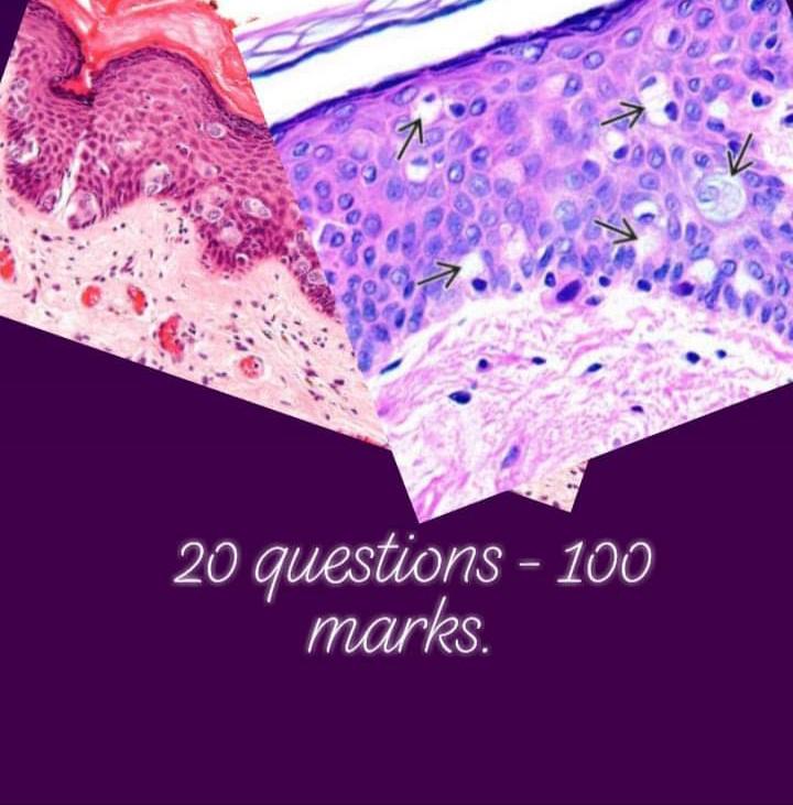 Breast pathology MCQs for FRCPath part 1 histopathology, DM Oncopathology, DM Histopathology, NEET-SS oncopathology