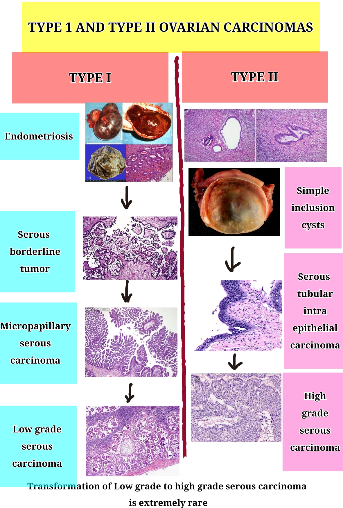 Type 1 and 2 ovarian cancers. Type 1 arises from a background of Endometriosis, then gives rise to serous borderline tumors and micropapillary serous borderline followed by low grade carcinoma. Type 2 aroses from a background of simple inclusion cysts, then gives rise to STIC ( serous tubular Intraepithel carcinoma) followed by high grade serous carcinoma. It is important to note that low grade carcinomas in ovary very rarely transform into high grade.
